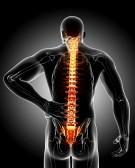 Mal di schiena 1